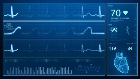Ecg - cardiogram concept in loop