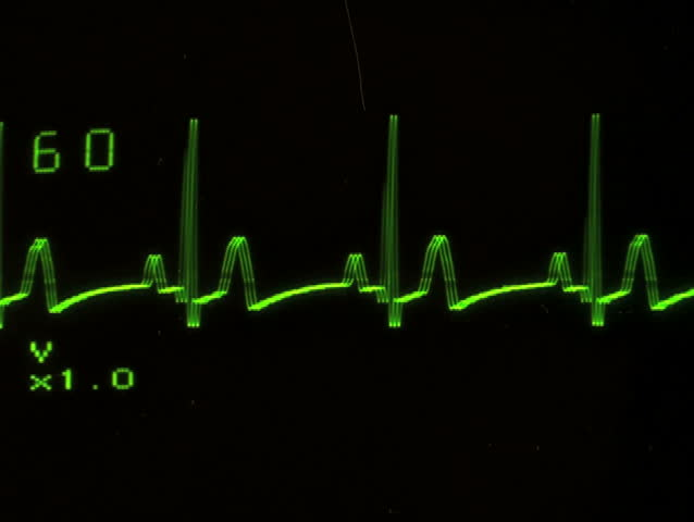 EKG screen close-up flat line - NTSC